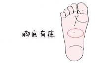 足痣的位置来分析你的命运