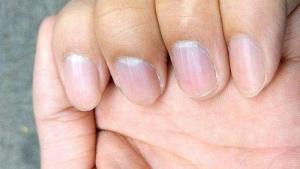 从手指头看健康运